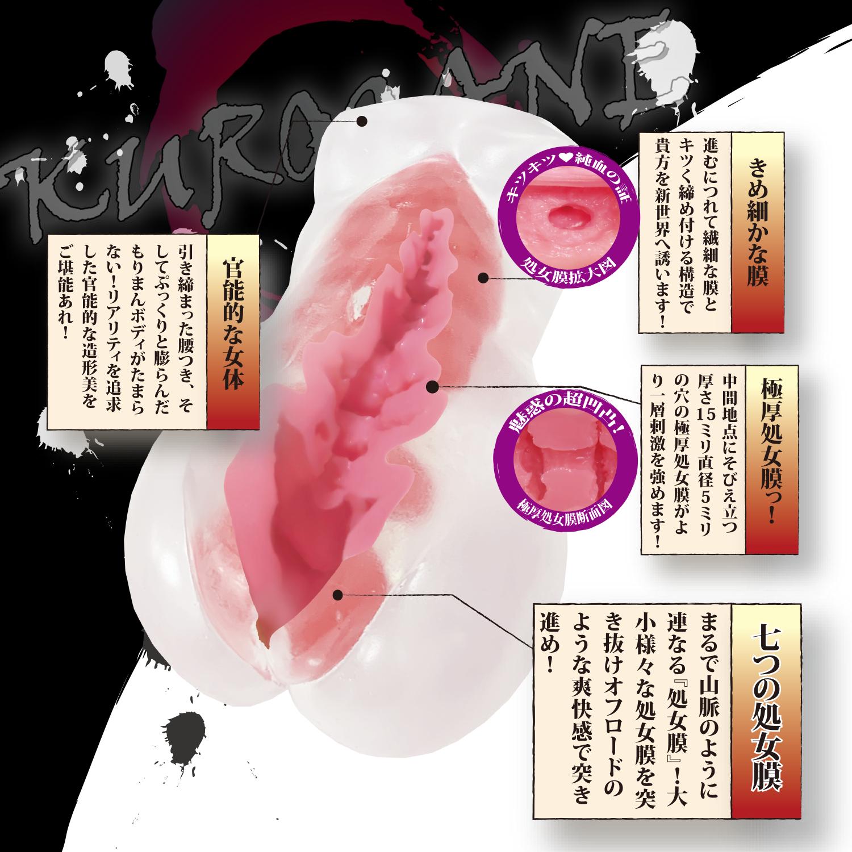 処女膜 画像 仙台中央クリニック